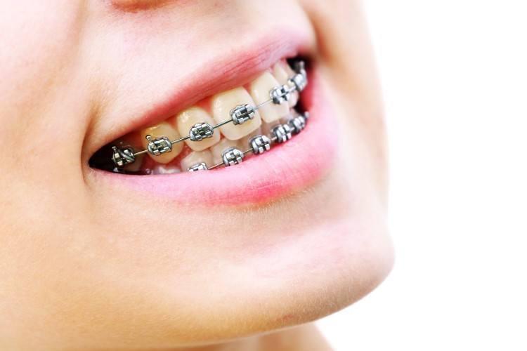 طرق-تركيب-تقويم-الاسنان.jpg