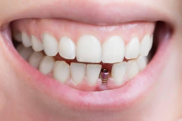 أسعار-زراعة-الأسنان-في-يوم-واحد-في-الرياض.jpg